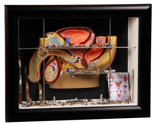 ShadowBox S 'Male Pelvis with Prostata